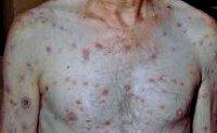 Вторичный сифилис: механизм развития, характерные симптомы, диагностика и тактика лечения