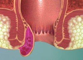 Выпадение геморроидальных узлов: клиническая картина, неотложная помощь, принципы лечения и возможные осложнения