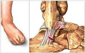 Вывих ноги в районе щиколотки: виды повреждений, характерные симптомы, методика лечения и период реабилитации