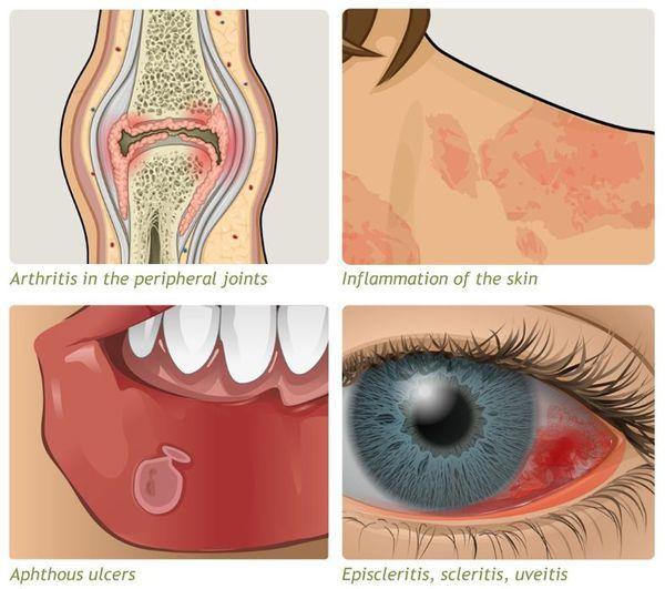 Язвенный колит неспецифический: как проявляется и диагностируется, профилактика