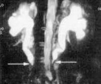 Забрюшиный фиброз, болезнь Ормонда: причины развития, основные симптомы, методы обследования и лечения
