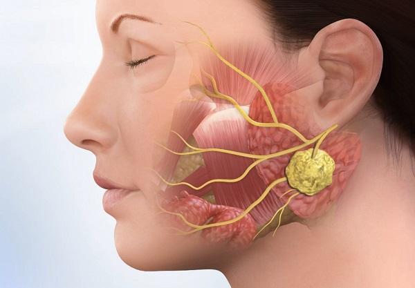 Заглоточный абсцесс: разновидности заболевания, характерные симптомы, диагностика и тактика лечения