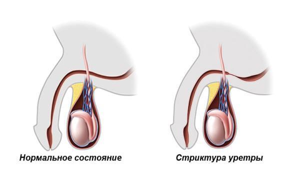Затрудненное мочеиспускание у мужчин и женщин: причины и особенности патологии, лечение