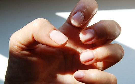 Заусенцы на пальцах: причины появления, самые эффективные методы лечения