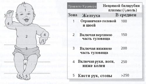 Желтуха новорожденных: причины, лечение, фототерапия, последствия физиологической желтухи