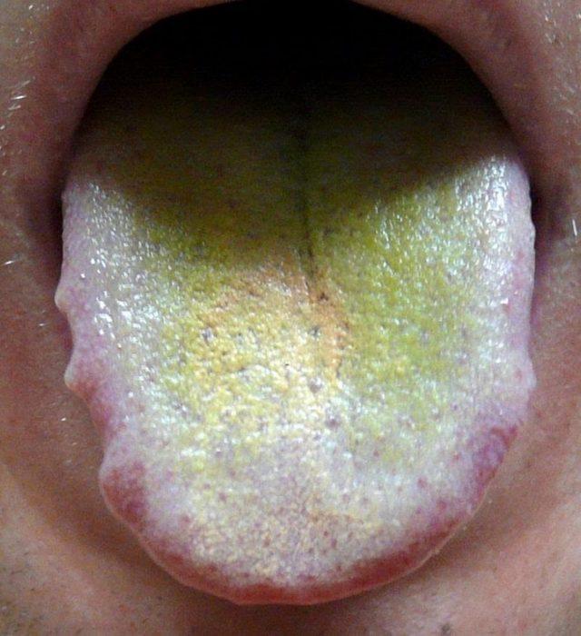 Желтый налет на языке у ребенка: провоцирующие факторы, возможные заболевания, диагностические и лечебные мероприятия