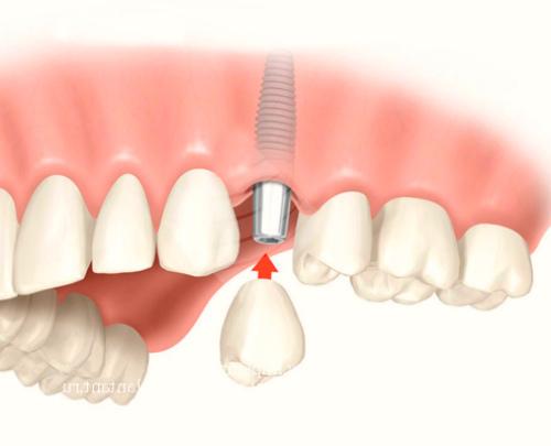 Зубные имплантаты: преимущества и недостатки, показания и противопоказания к установке
