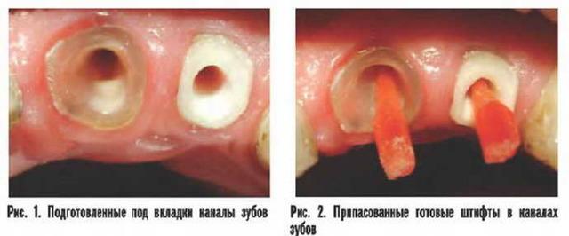 Зубные вкладки в стоматологии: что это такое, виды, материалы, процесс установки