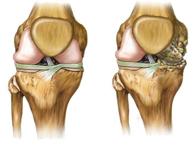 Артрит коленного сустава: что это такое, виды и описание болезни, причины появления, симптомы, диагностика и лечение
