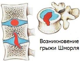 Грыжа Шморля - что это такое: причины, виды, симптомы, лечение физкультурой, оперативное вмешательство, возможные осложнения и профилактика