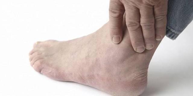 Подагра у мужчин: что это такое, симптомы и причины заболевания, стадии, правила диагностики, лечение, диеты, прогноз и рекомендации специалистов
