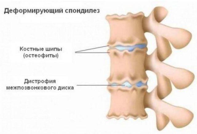 Спондилез – пояснично-крестцового и шейного отдела позвоночника: что это такое, основные причины возникновения, особенности диагностики, лечение и профилактика