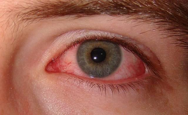 Аденовирусная инфекция у детей: симптомы, лечение и 7 профилактических мер от педиатра
