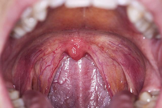 Ангина герпетическая: 5 особенностей течения и лечение у детей