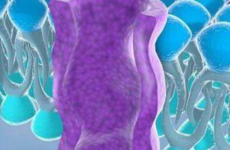 Чем аденомиоз отличается от эндометриоза