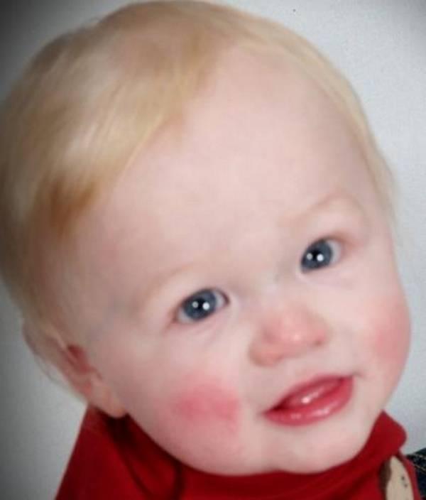 Эозинофилы повышены у ребенка: 10 причин повышения, 7 показаний для анализа