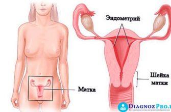Характер и объем выделений после гистероскопии: норма и патология