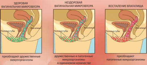 Как можно восстановить микрофлору после лечения молочницы