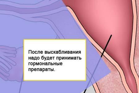 Как проводится выскабливание матки при эндометриозе