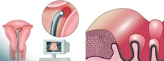 Когда требуется абляция эндометрия