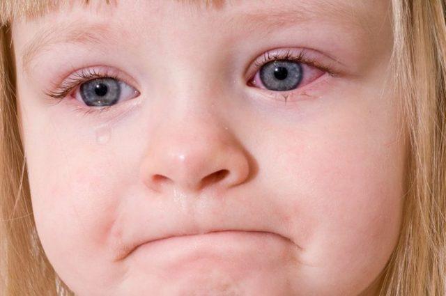 Конъюнктивит у детей: 4 разновидности одной болезни и советы педиатра
