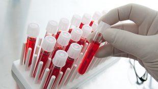 Лечение хронического эндометрита перед ЭКО