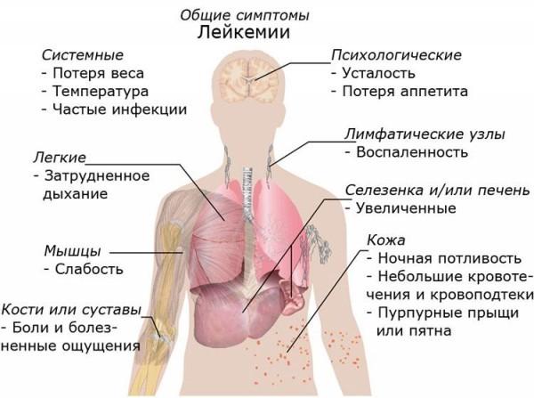 Лейкоз у детей: 5 групп факторов риска, 2 вида болезни, 7 ведущих симптомов, 4 способа лечения