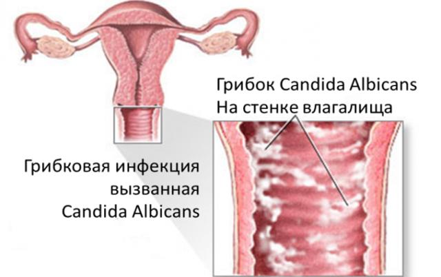 Молочница перед родами и после них: опасность и эффективное лечение