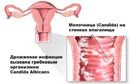 Может ли у женщины молочница пройти сама по себе