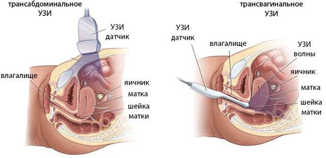 На какой день менструального цикла проводится УЗИ органов малого таза