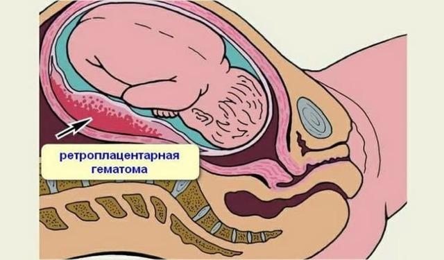 Почему идут кровянистые выделения при беременности