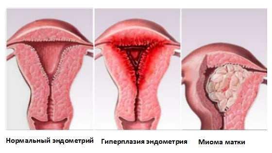 Причины и лечение гиперплазии эндометрия в менопаузе