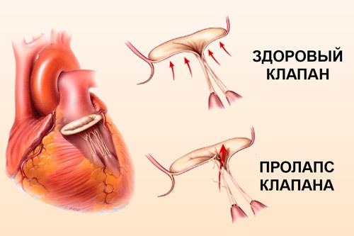 Пролапс митрального клапана у детей: что такое, 9 симптомов, диагностика и лечение