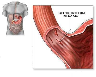 Рвота с кровью у ребенка: 5 причин, 3 метода диагностики, лечение