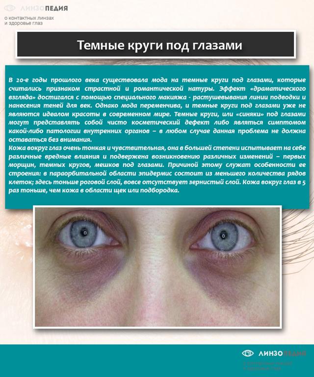 Синяки под глазами у ребенка: 12 возможных причин, методы лечения и профилактики