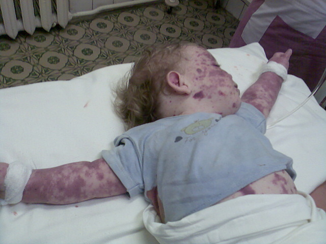 Тромбоцитопеническая пурпура у детей: 6 этиологических факторов, симптомы, методы лечения