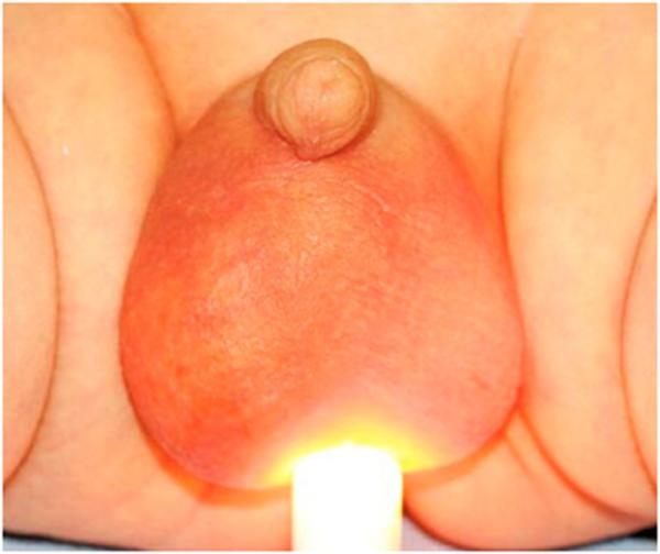 Водянка яичка у ребенка: 17 причин, симптомы, 3 показания для операции