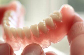 Зубные протезы на присосках: разновидности, плюсы и минусы