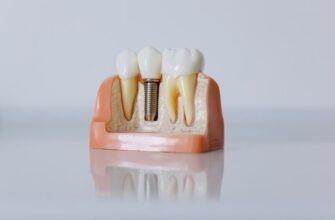 Чем привлекательна операция по имплантации зуба для пациентов?